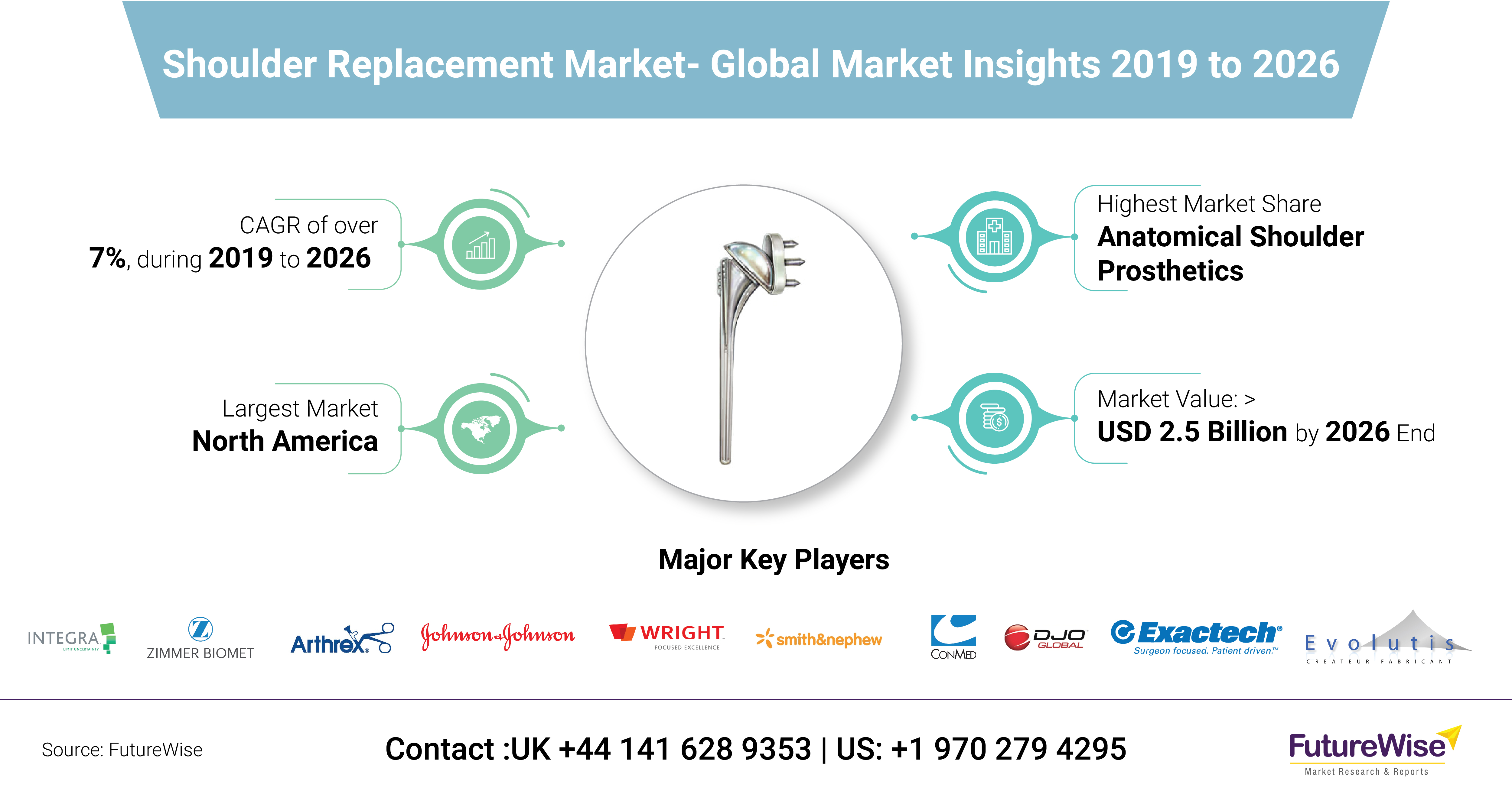 Shoulder Replacement Market Share, Size and Trends