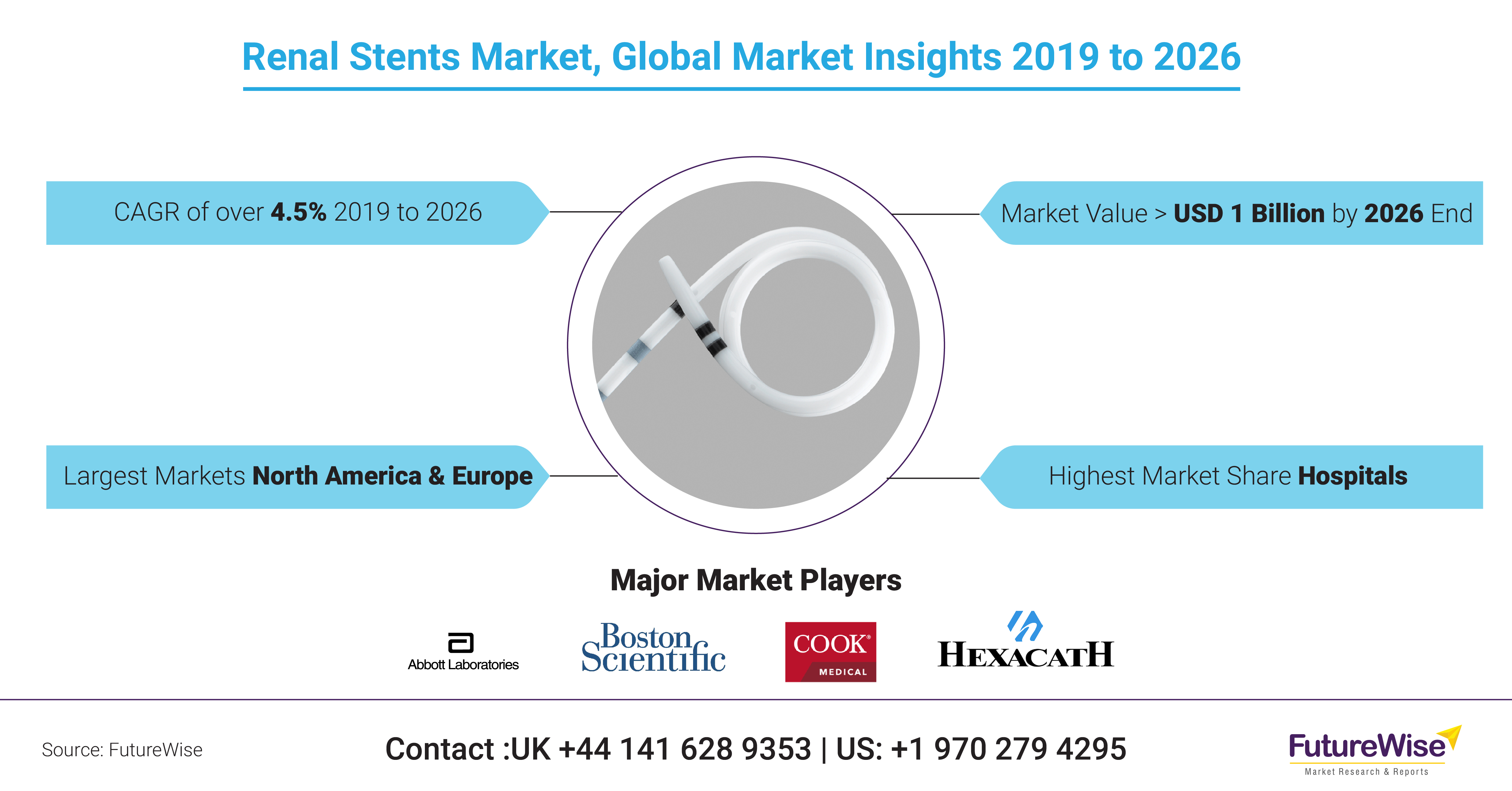 Renal Stents Market Share, Trends and Size